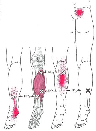 best 25 calf muscle anatomy ideas on pinterest  calves