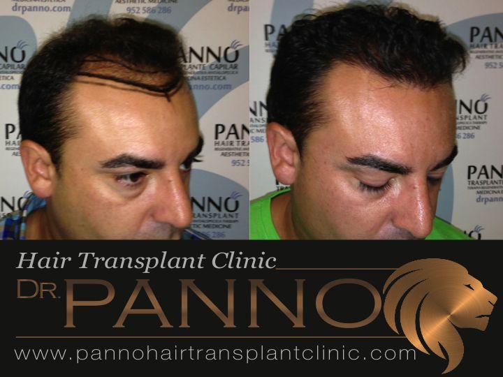 Trasplante capilar tecnica FUE Dr. Panno