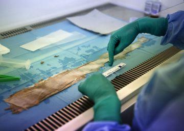 El niño mariposa que regeneró el 80% de su piel gracias a células madre transgénicas