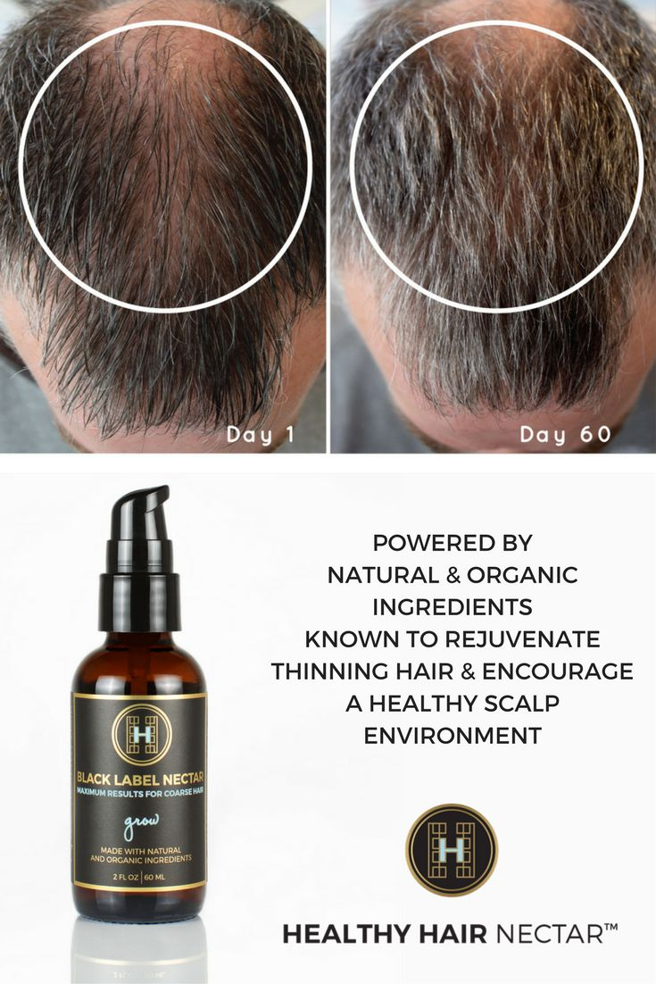 The 25+ best Thinning hair remedies ideas on Pinterest | Thinning ...