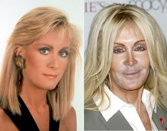 Remember Joan Van Ark from 'Knots Landing'? Yup, that's really her.    Read more: http://www.nydailynews.com/life-style/stars-age-badly-gallery-1.34252#ixzz1yaJMatDT