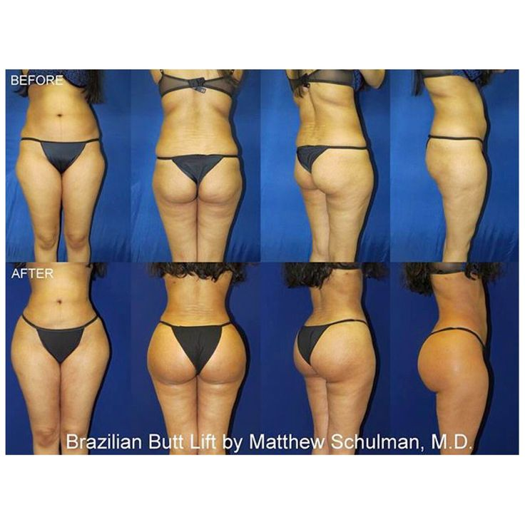 Want to get a tiny waist and perfect bum? http://www.4myprosperity.com/the-2-week-diet-program/