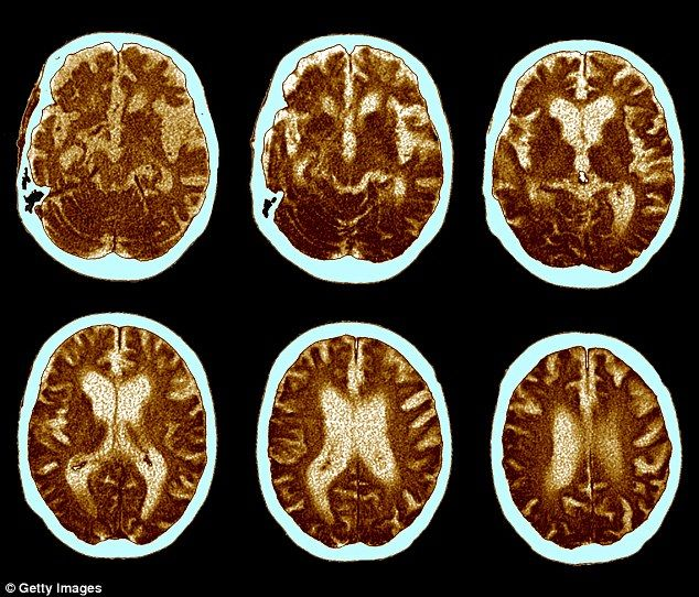 Regular yoga practice could be a simple, safe and low-cost solution to improving brain fitness and ward off ageing, researchers said. Pictured are brains scans of people suffering Alzheimer's disease