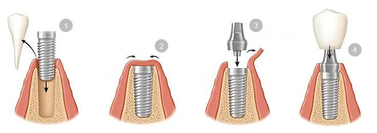 colocacion-implantes-dentales.jpg (846×299)