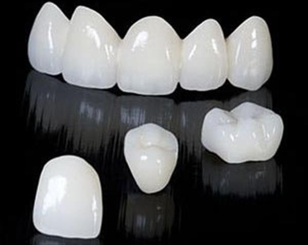 3ders.org - Chinese researchers make breakthrough in SLA 3D printing, soon be able to 3D print porcelain teeth in minutes | 3D Printer News & 3D Printing News