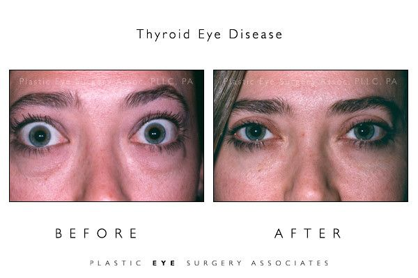 Thyroid And Bulging Eyes Disease More Details Can Be Found By