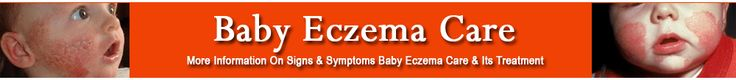 baby eczema, home remedies for eczema, how to cure eczema, best lotion for eczema, lotion for eczema