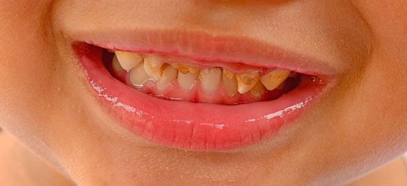 Κι όμως, δεν είναι τα γλυκά που χαλούν τα δόντια των παιδιών, όπως πιθανότατα φανταζόσασταν. Μάθετε τι χαλά τα δόντια τους και προστατεύστε τα!