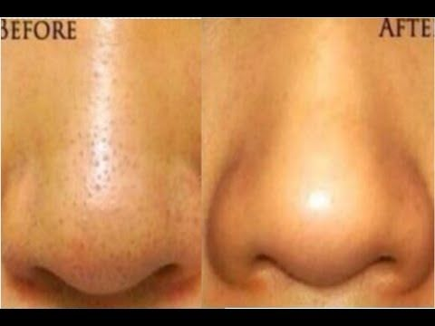 How to Shrink Large Pores on Nose Overnight