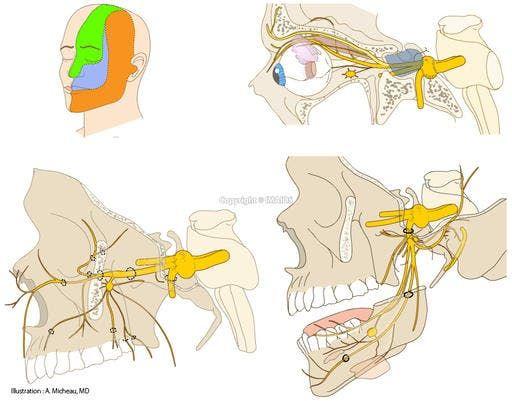 Trigeminal nerve [V] (Ophthalmic nerve; Ophthalmic division [Va; V1] - Maxillary nerve; Maxillary division [Vb; V2] - Mandibular nerve; Mandibular division [Vc; V3]) (Illustrations: A. Micheau - MD) : Dermatomes, Chorda tympani, Trigeminal ganglion, Inferior alveolar nerve, Auriculotemporal nerve, Buccal nerve, Nerve to lateral pterygoid, Nerve to medial pterygoid, Nerve to tensor tympani, Nerve to tensor veli palatini, Anterior ethmoidal nerve, Posterior ethmoidal nerve, Frontal nerve…
