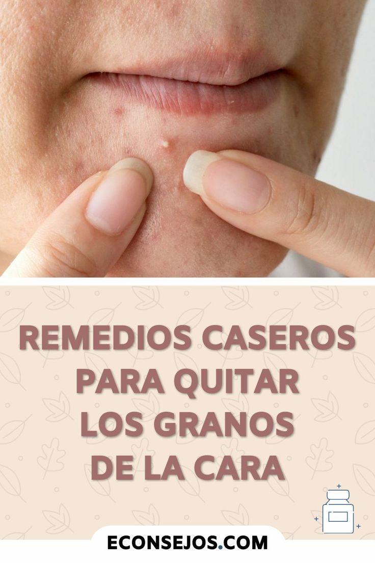 Cómo Quitar Los Granos De La Cara Usando Remedios Caseros Remedio Para La Piel Casero Remedios Para La Cara Remedios Caseros