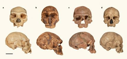 Skull-shape differences.