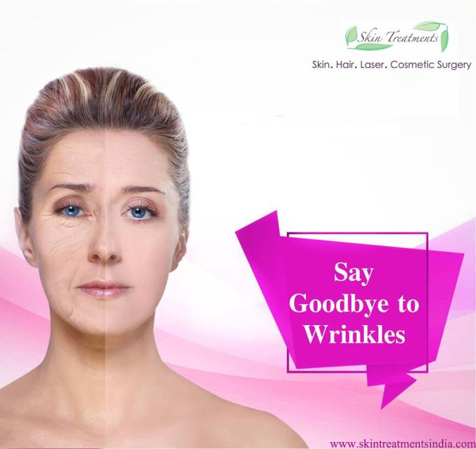 Skin Treatments India: Wrinkles treatment-What exactly it is?