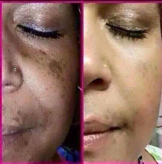 Look what Nerium does for skin tone!  Vvictor.nerium.com