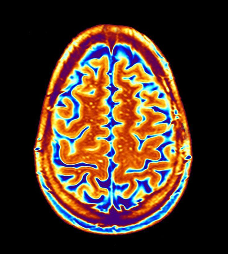 Diagnosing autism using brain scans