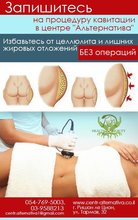 жир на животе фото у мужчин