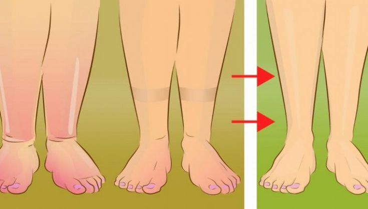 5 Χρήσιμες Συμβουλές για να Ανακουφίσετε τα Πρησμένα Πόδια σας με Φυσικό Τρόπο.