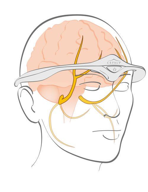 migraine trigeminal nerve system hypothesis