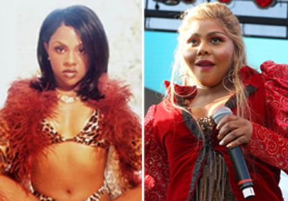 The 20 Most Shocking Celebrity Plastic Surgery ...