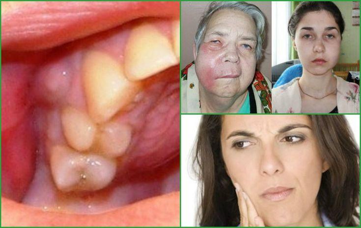 Одонтогенная киста – чем опасна киста зуба