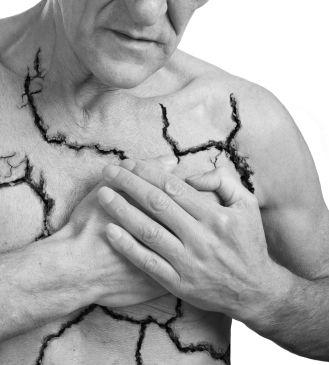 « Angor » est le nouveau nom pour désigner l'angine de poitrine, un symptôme se manifestant par des crises douloureuses et violentes avec une sensation de serrements au niveau de la poitrine, pouvant parfois s'étendre aux zones du corps...