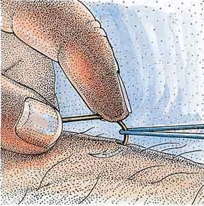Nasty Hook Photos: How to Remove a Fish Hook and Treat the Injury   Outdoor Life