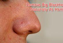 Remove Big Blackheads Naturally At Home
