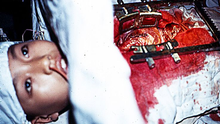 10 Worst Medical Mistakes (Disturbing Content)
