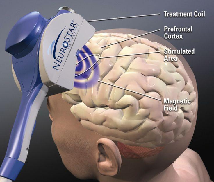 Brain enhancer pill picture 5