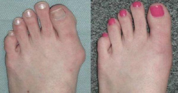Υγεία - Οι κάλοι είναι στην ουσία παραμορφώσεις των οστών των δαχτύλων των ποδιών μας, που μπορεί να οφείλονται σε κάποια γρίπη, αμυγδαλίτιδα, ουρική αρθρίτιδα, κα