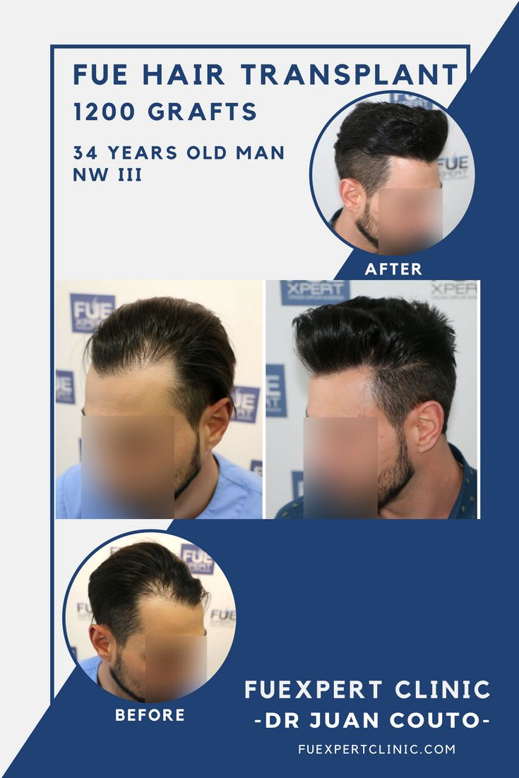 1200 Grafts FUE Hair Transplant by Dr. Juan Couto