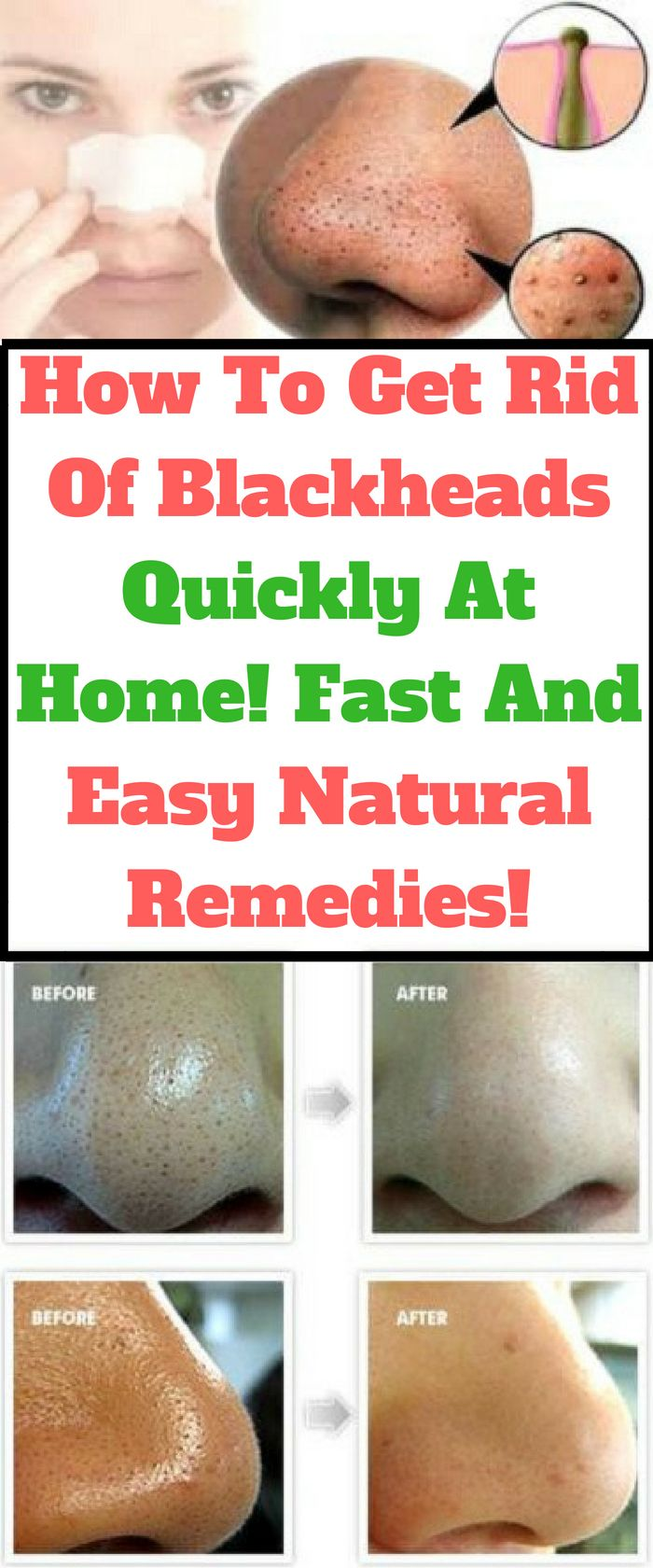 How To Get Rid Of Blackheads Quickly At Home! Fast And Easy Natural Remedies!