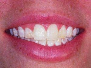 Teeth Whiteners That Work