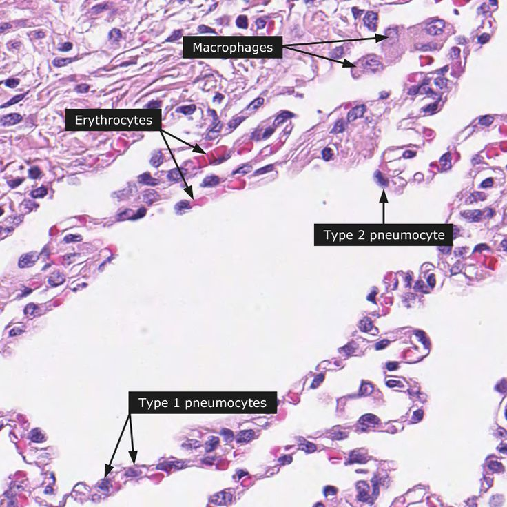 Alveoli in the lungs have: Type I pneumocytes--- gas ...