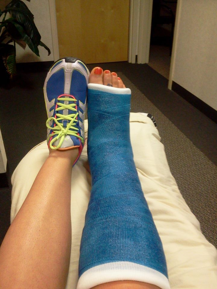 Leg cast colors