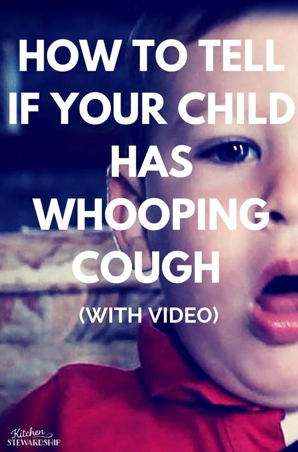 Signs and Symptoms of Whooping Cough in KidsKatie Kimball | Kitchen Stewardship, Kids Cook Real Food
