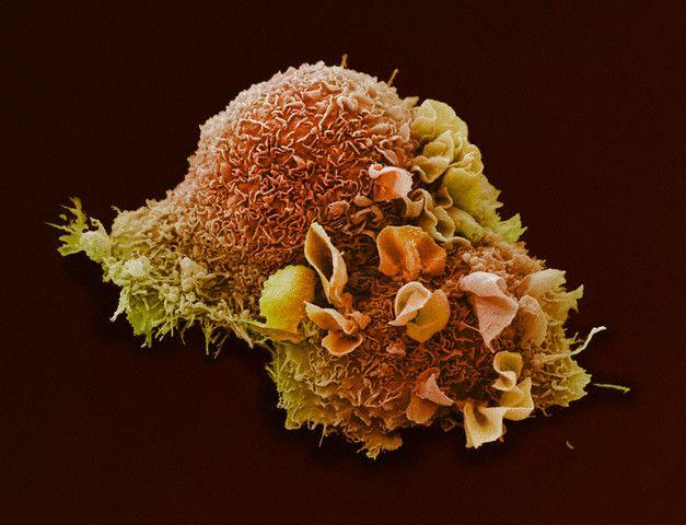 Клетка рака лёгкого. (Фото Visuals Unlimited / Corbis.)