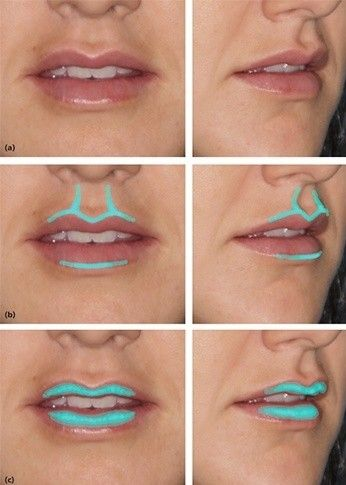 How To Contour Thin Upper Lips
