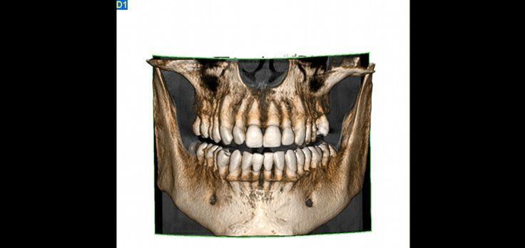 Ein 3D-Datensatz erleichtert die Kommunikation zum Patienten. Anhand aussagekräftiger und frei angulierbarer 3D-Bilder läßt sich die Behandlungsplanung im Detail erläutern.