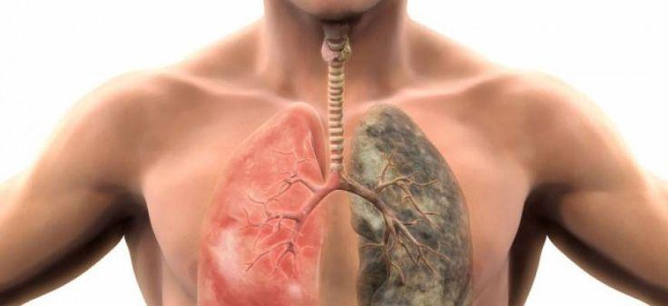 Δείτε σε πόσο καιρό θα καθαρίσουν οι πνεύμονες σας όταν κόψετε το τσιγάρο