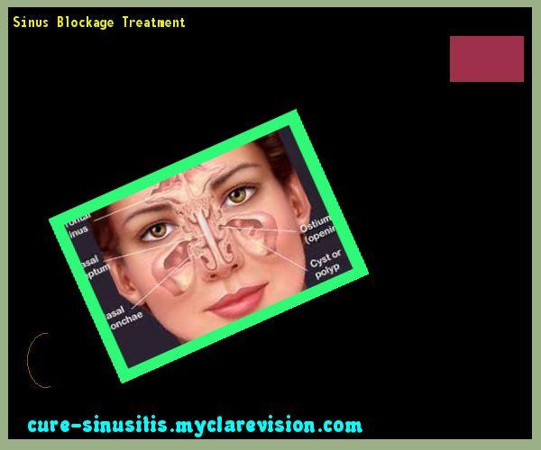Sinus Blockage Treatment 105620 - Cure Sinusitis