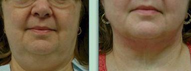 Double Chin Eliminator With Facial Rejuvenation Exercises