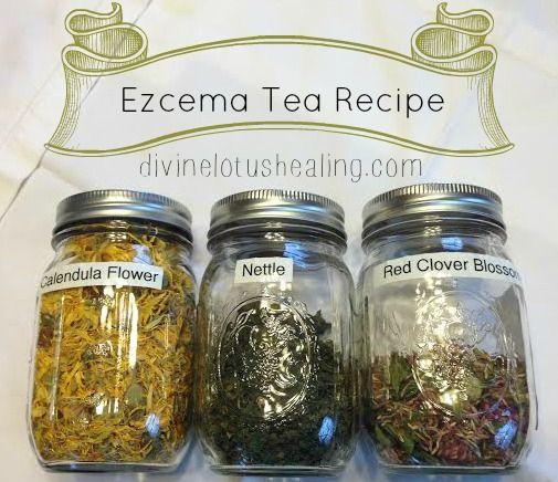 Eczema Tea Recipe - Divine Lotus Healing