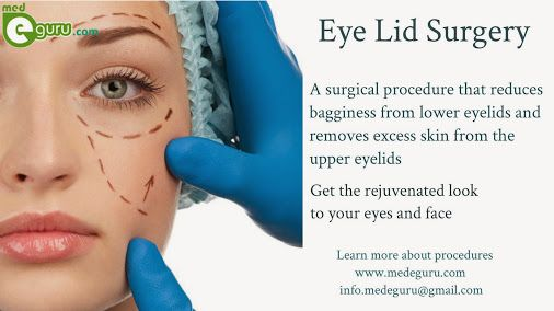 Get the refreshed look to your #Eyes and Face through Eye Lid Surgery. Know more on procedures and various treatments. Visit : http://goo.gl/tupNd8