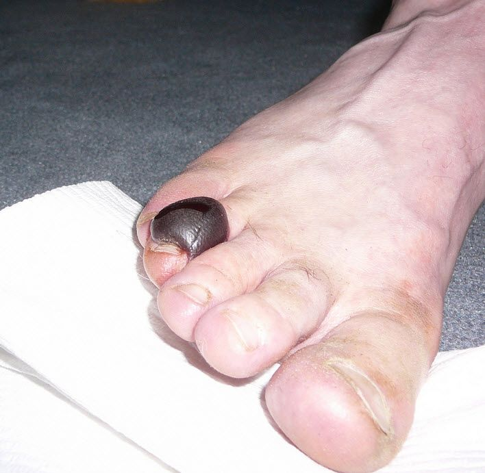 how to avoid blisters on feet