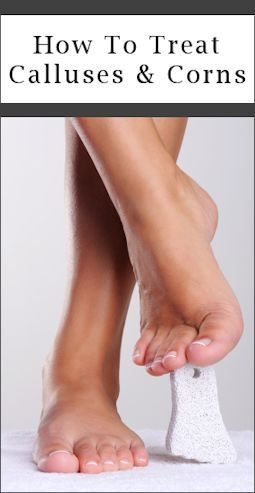 How can you treat corns on your toes?
