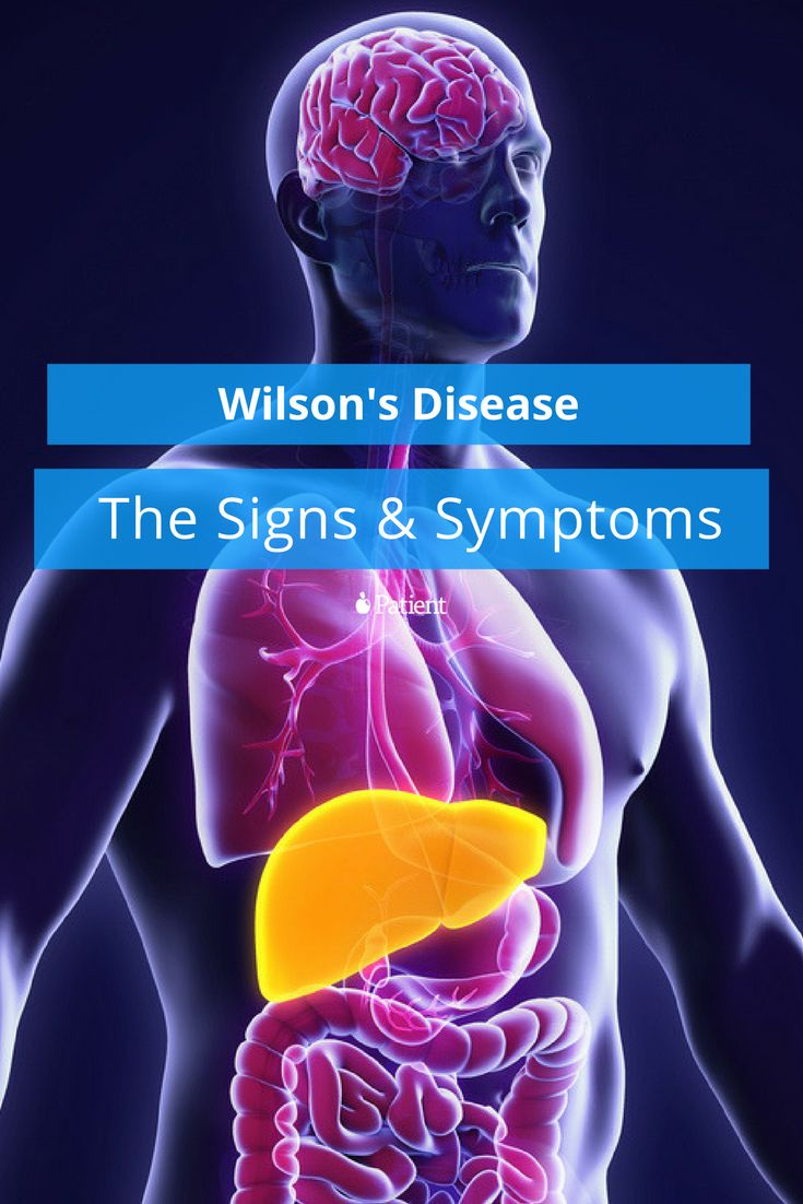 the characteristics and symptoms of wilsons disease a genetic disorder Wilson disease is a genetic condition that causes a buildup of copper in the body and leads to liver, eye, and brain issues symptoms of wilson disease can present .