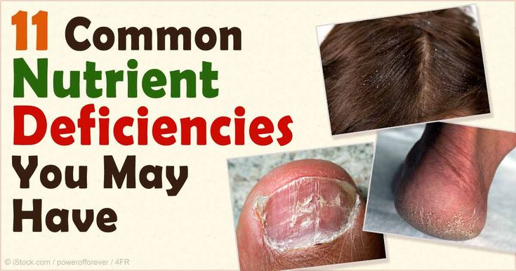 11 of the most common nutrient deficiencies include vitamins D, K2, B12, E, and A, omega-3, magnesium, iodine, calcium, iron, and choline. http://articles.mercola.com/sites/articles/archive/2015/10/19/most-common-nutrient-deficiencies.aspx