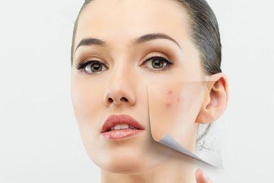 A rosácea é uma doença inflamatória da pele , esta é uma doença crónica , cujos sintomas envolv...