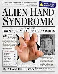 Alien Hand Syndrome and the Disunity of Mind